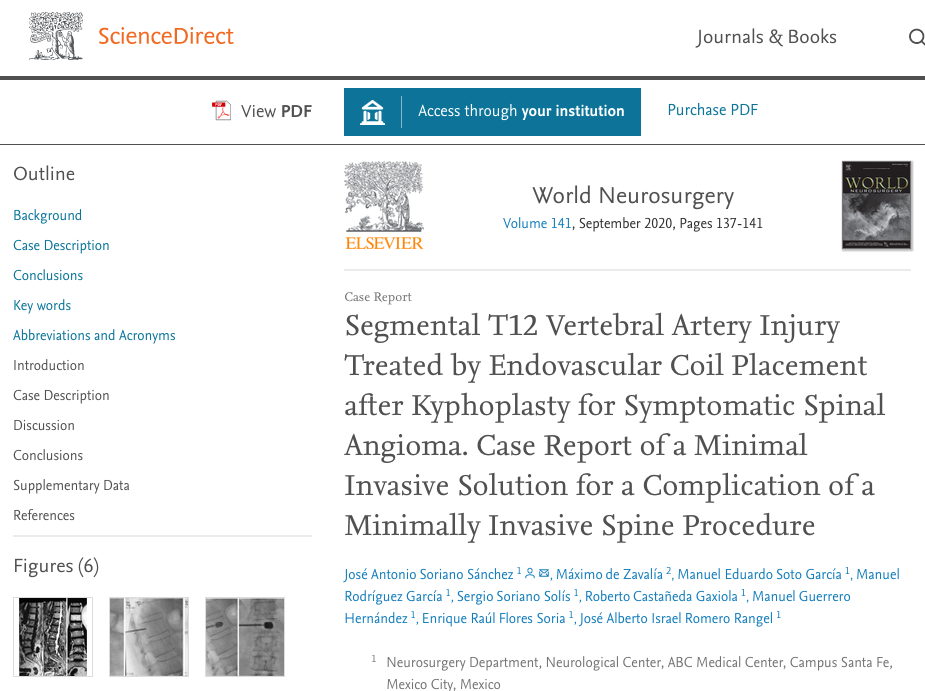 Segmental T12 Vertebral Artery Injury Treated by Endovascular Coil Placement after Kyphoplasty for Symptomatic Spinal Angioma. Case Report of a Minimal Invasive Solution for a Complication of a Minimally Invasive Spine Procedure